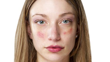 Image result for skin irritation face