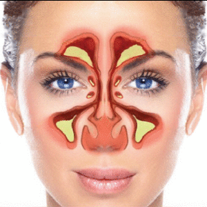 What are ways to stop sinus drainage? | Ear, Nose and Throat