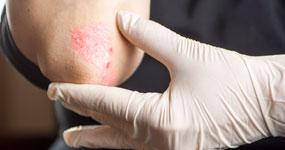 Psoriasis or Psoriatic Arthritis