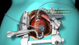 Off-Pump Heart Surgery