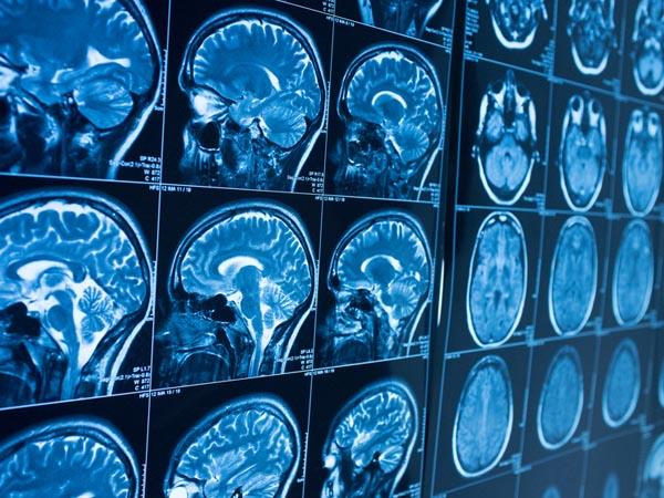 Parkinson's Disease, Explained