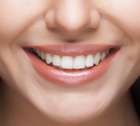 Brush Up On the Latest Dental-Filling Options