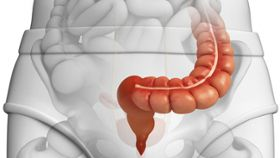 How Effective Is Sigmoidoscopy in Screening for Colon Cancer?