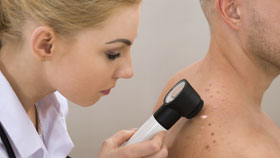 Stage 2 Basal Cell Carcinoma