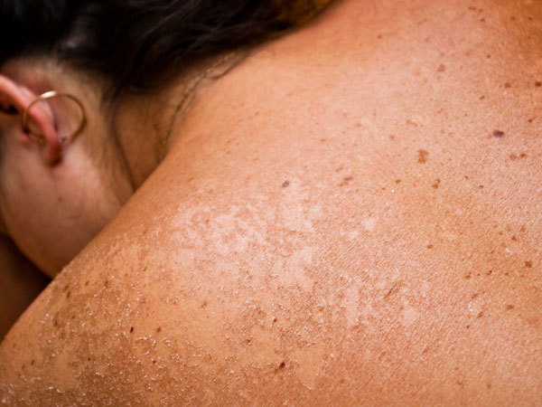 Simple Ways to Spot Skin Cancer