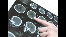 Reduce Your Stroke Risk with Atrial Fibrillation