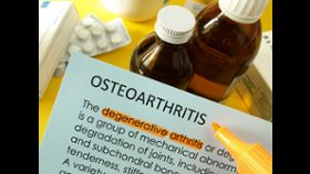 Signs of Osteoarthritis: Stiffness, Pain, Swelling in Joints