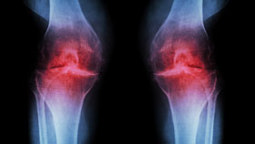 Osteoarthritis Causes and Risk Factors