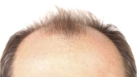 How Can I Prevent My Hairline From Receding?