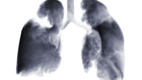 Lung Disease and Respiratory System