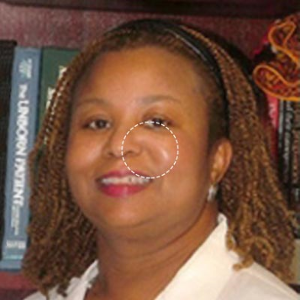 Dr. Joanie Y. Hare, MD