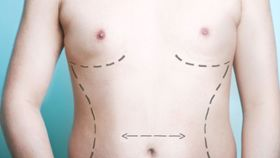 What Are the Risks of Body Contouring Surgery?