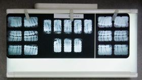 3 Questions to Ask Your Dentist About Dental X-Rays