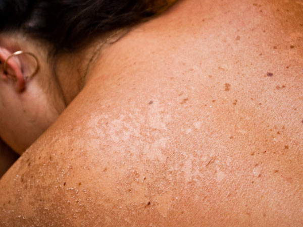 how to get skin cancer