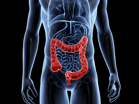 What Are the Causes of Colon Cancer