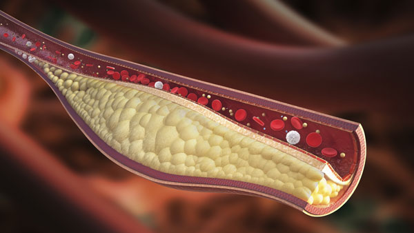 What Is LDL Cholesterol?