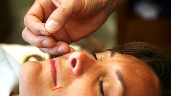 Are There Any Risks With Acupuncture?