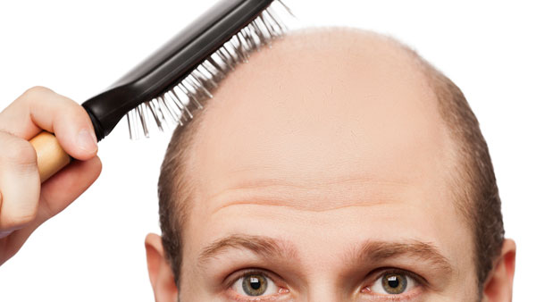 How Much Hair Loss Is Too Much?
