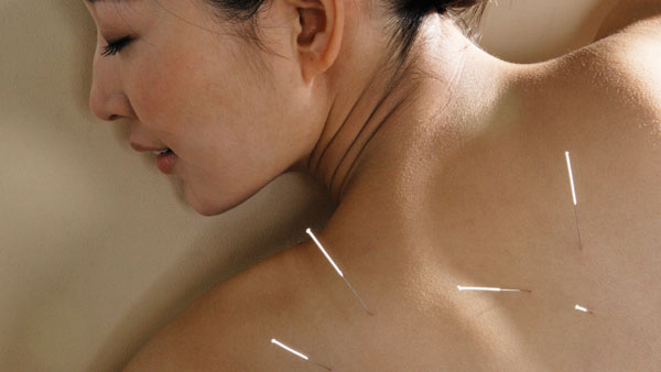 Does Acupuncture Treat Back Pain Effectively?