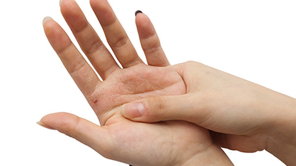 What Is the Difference Between Psoriatic and Rheumatoid Arthritis?