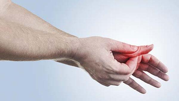 What Are the Symptoms of Psoriatic Arthritis?