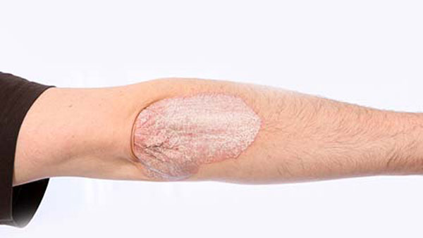 If I Have Psoriasis Will I Also Have Psoriatic Arthritis?