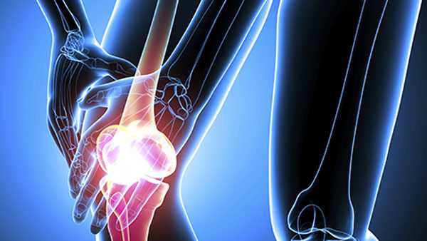 What Is a Synovectomy for Rheumatoid Arthritis?