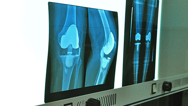 What Is Arthroplasty for Rheumatoid Arthritis?