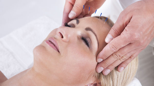 What Is Scalp Acupuncture?