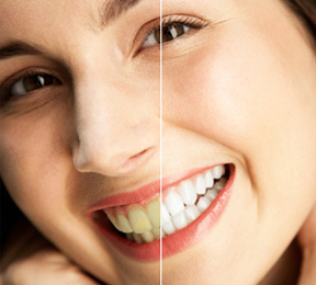 About to Whiten Your Teeth? Read This First!