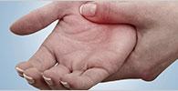 Rheumatoid Arthritis: Doctor Visit Guide