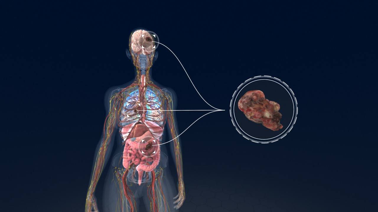 A Virtual Look at How Lung Cancer Develops